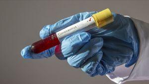 Dünya genelinde Kovid-19 vaka sayısı 2 milyon 200 bini aştı